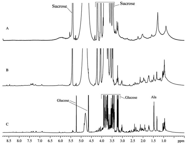 1H-NMR spectra of biological fluids.