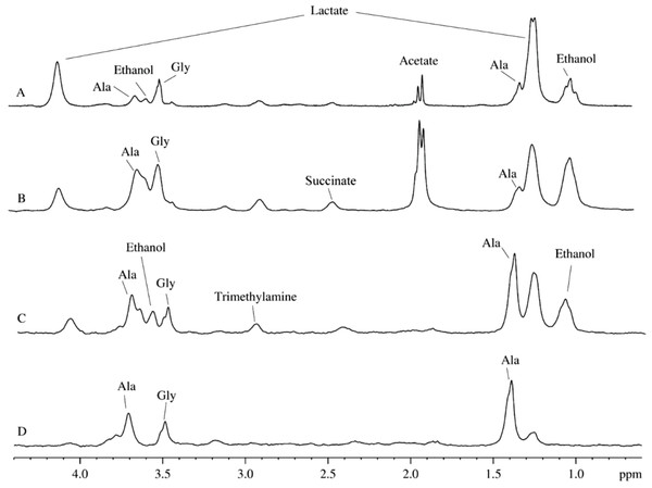 2H-NMR spectra of biological fluids.
