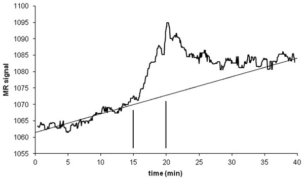 Time-signal curve in an a priori midbrain VOI from the single-dose fMRI experiment described in Methods.