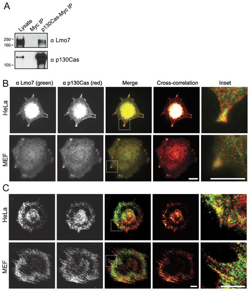 p130Cas associates with Lmo7 in HeLa cells and MEFs.