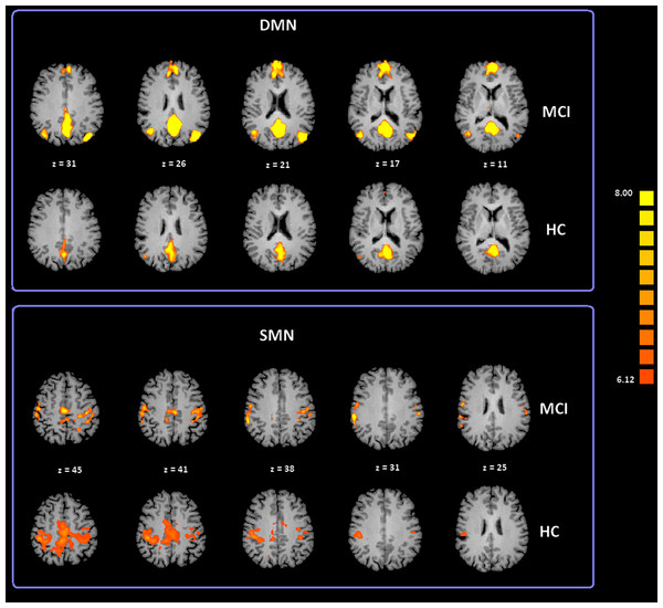 Cortical representation of two group level RSNs (DMN and SMN) in MCI patients and HC.