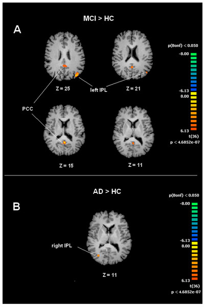 Between group differences in DMN for MCI patients and Healthy controls (HC).