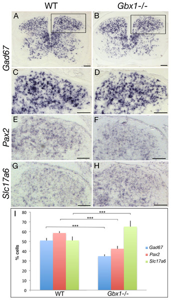 Abnormal GABAergic differentiation in Gbx1−/− mice.