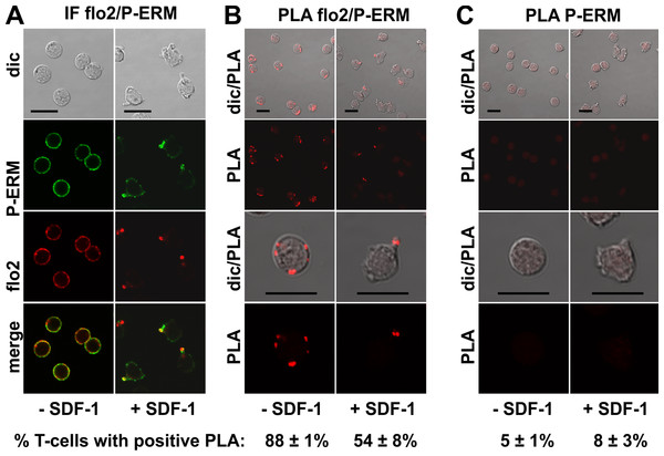 Interaction of P-ERM and flotillin-2 in human T-cells studied with PLA.
