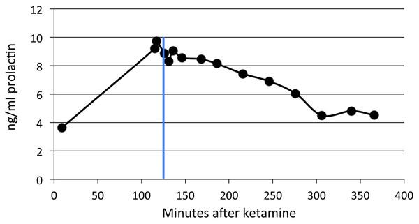 SKF82958 effects on plasma prolactin.