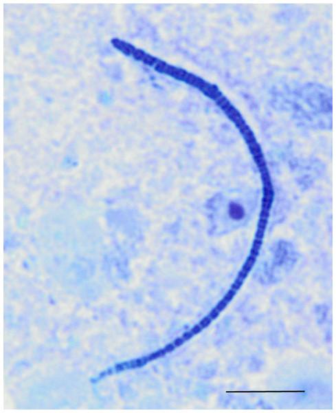 Light microscopy of segmented filamentous bacteria in the turkey ileum.