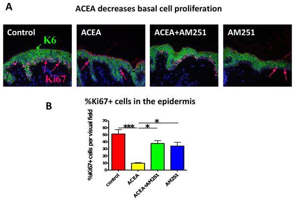 The CB1 specific agonist, ACEA significantly decreases human epidermal keratinocyte proliferation in situ.