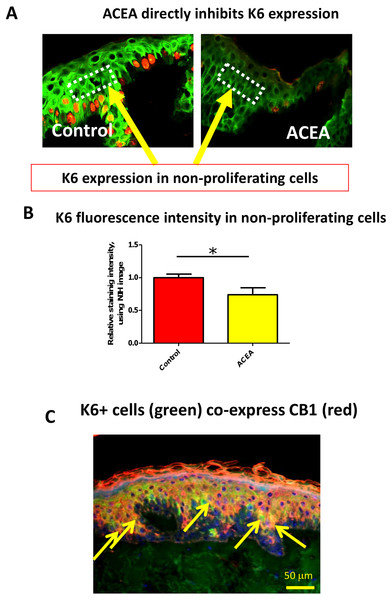The CB1 specific agonist, ACEA, significantly decreases K6 expression in suprabasal cells in a proliferation-independent manner.