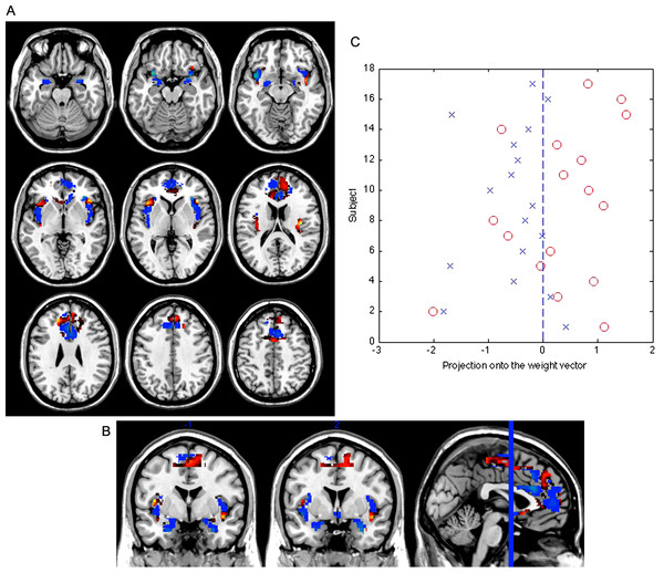Weight vector map showing the most discriminating brain regions between groups (top 5%).