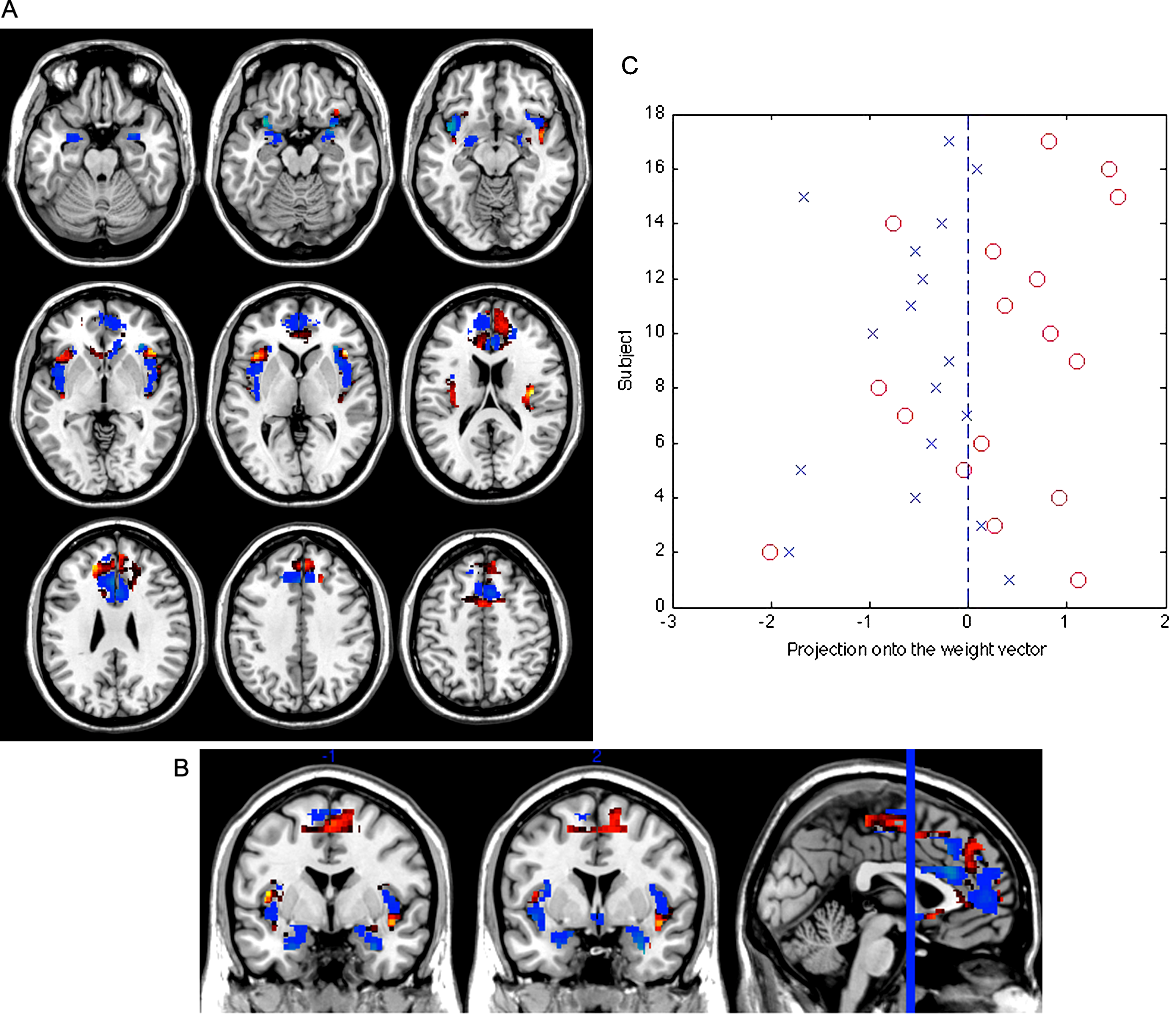 Pattern Classification Of Brain Activation During