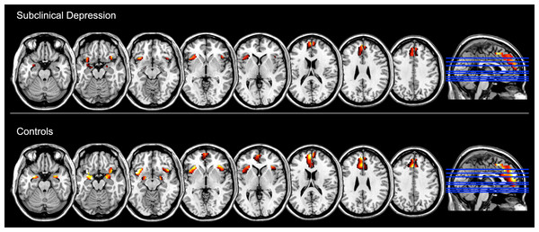 Brain regions showing increased functional activation during the experience of negative emotion (relative to the neutral condition) within groups, as measured with standard General Linear Model analysis and at p < 0.05, FDR corrected (z = −22, −17, −12, −2, 3, 18, 28, 38).