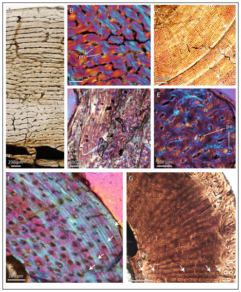Bone microstructure in selected basal therocephalians and Permo-Triassic eutherocephalians.