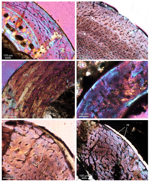 Bone microstructure in selected Permo-Triassic baurioid eutherocephalians.