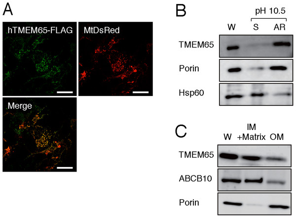 Analysis of intra-mitochondrial localization of hTMEM65.