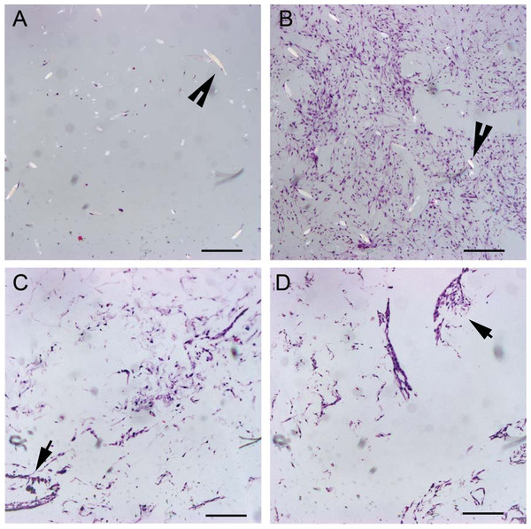 Histologic cell distribution on PGA and OPLA scaffolds.