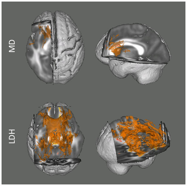 Results from the tract-based spatial statistics (TBSS) analyses depicting the voxels that showed significant associations between head motion and diffusion metrics.