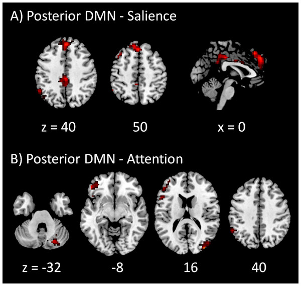 Voxel-wise PPI results between the posterior DMN and task positive networks.