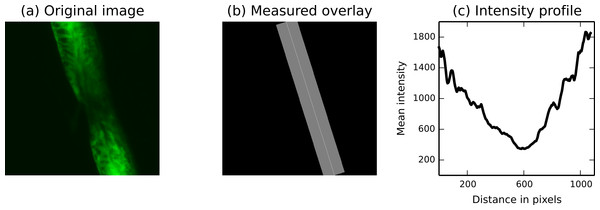 The measure.profile_line function being used to track recovery in spinal cord injuries.