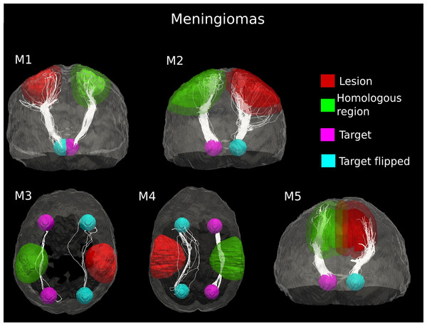 Comparative tractography study between the two hemispheres in the five cases of meningioma.