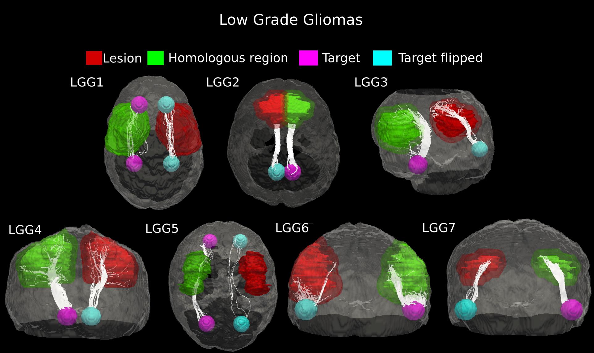 Alterations In Fiber Pathways Reveal Brain Tumor Typology