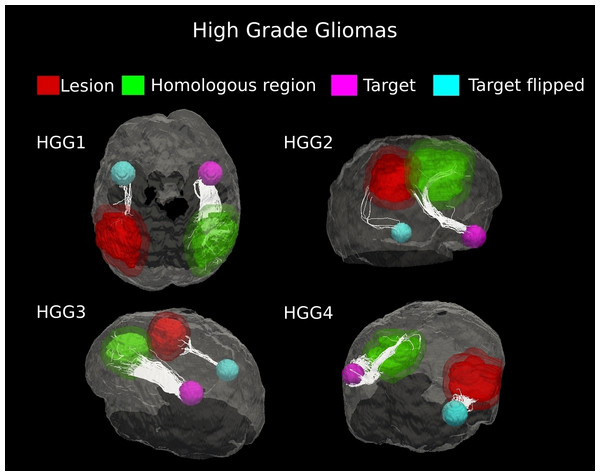 Comparative tractography study between the two hemispheres in the four cases of high-grade gliomas.