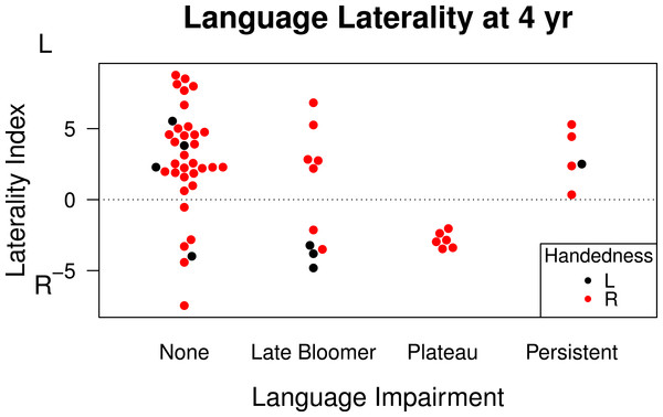 Language laterality index on functional transcranial Doppler ultrasound by language status.