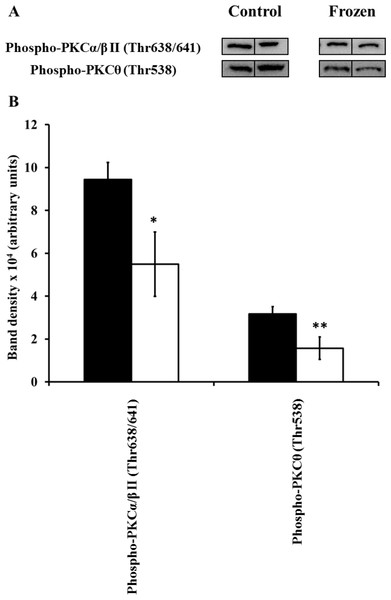 Changes in phosphorylation levels of PKC isozymes in frog hind leg skeletal muscle during freezing.