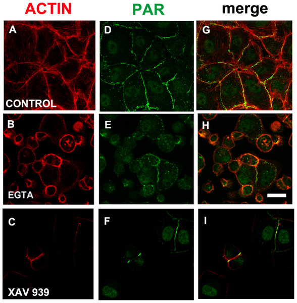 EGTA and XAV 939 affected the actin cytoskeleton, cell shape and cell adhesion.