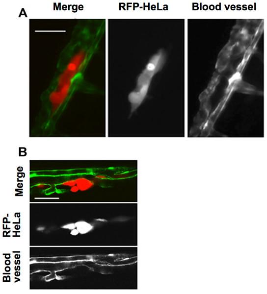 Extravasation of cancer cells after severe emboli formation in arterioles of zebrafish larvae.