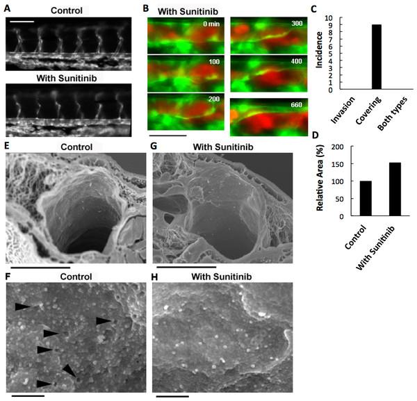 Effects of anti-angiogenic inhibitor, sunitinib, on the vasculature of zebrafish larvae and cancer cell extravasation.