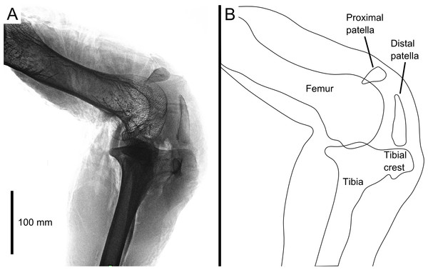 Digital radiograph (A) and line drawing (B) of the ostrich right knee joint, in lateral view, showing sagittal plane locations of the two patellae with respect to bones and soft tissues.