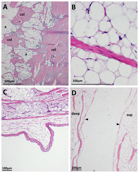 Some histological features of the patellar tendon in emus.