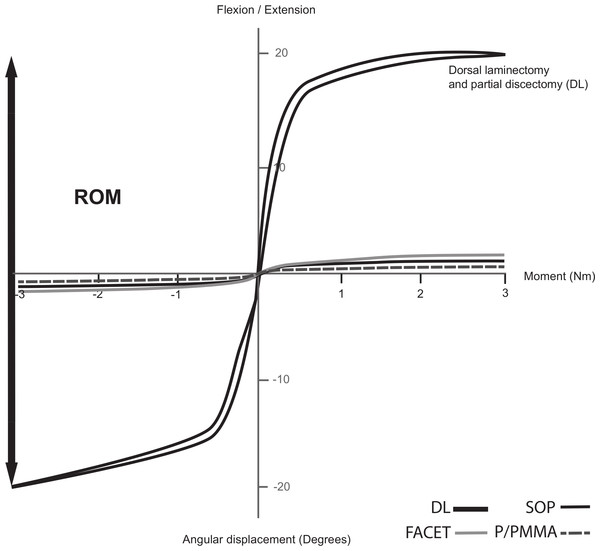 Typical load–deflection curve in a canine cadaver lumbosacral spine during cyclic loading (flexion and extension) of spines after dorsal laminectomy and partial discectomy (DL) and each stabilization technique (SOP—black solid, FACET—light grey solid and P/PMMA—dark grey dashed).