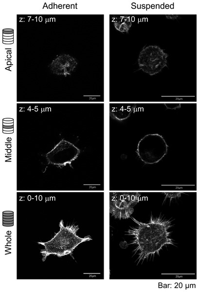 Confocal laser-scanning microscopy (CLSM) images of fluorescently labeled F-actin of adhered and BAM-anchored suspended HEK293 cells.