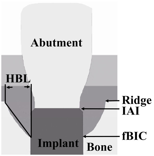 Schematic representation of the landmarks for the measured radiographic parameters.