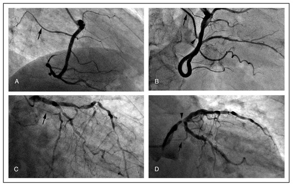 Representative angiographic images of the SNA (arrows) demonstrating the general feasibility of its visualization.