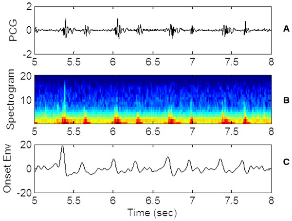 PCG, spectrogram and ose waveforms.