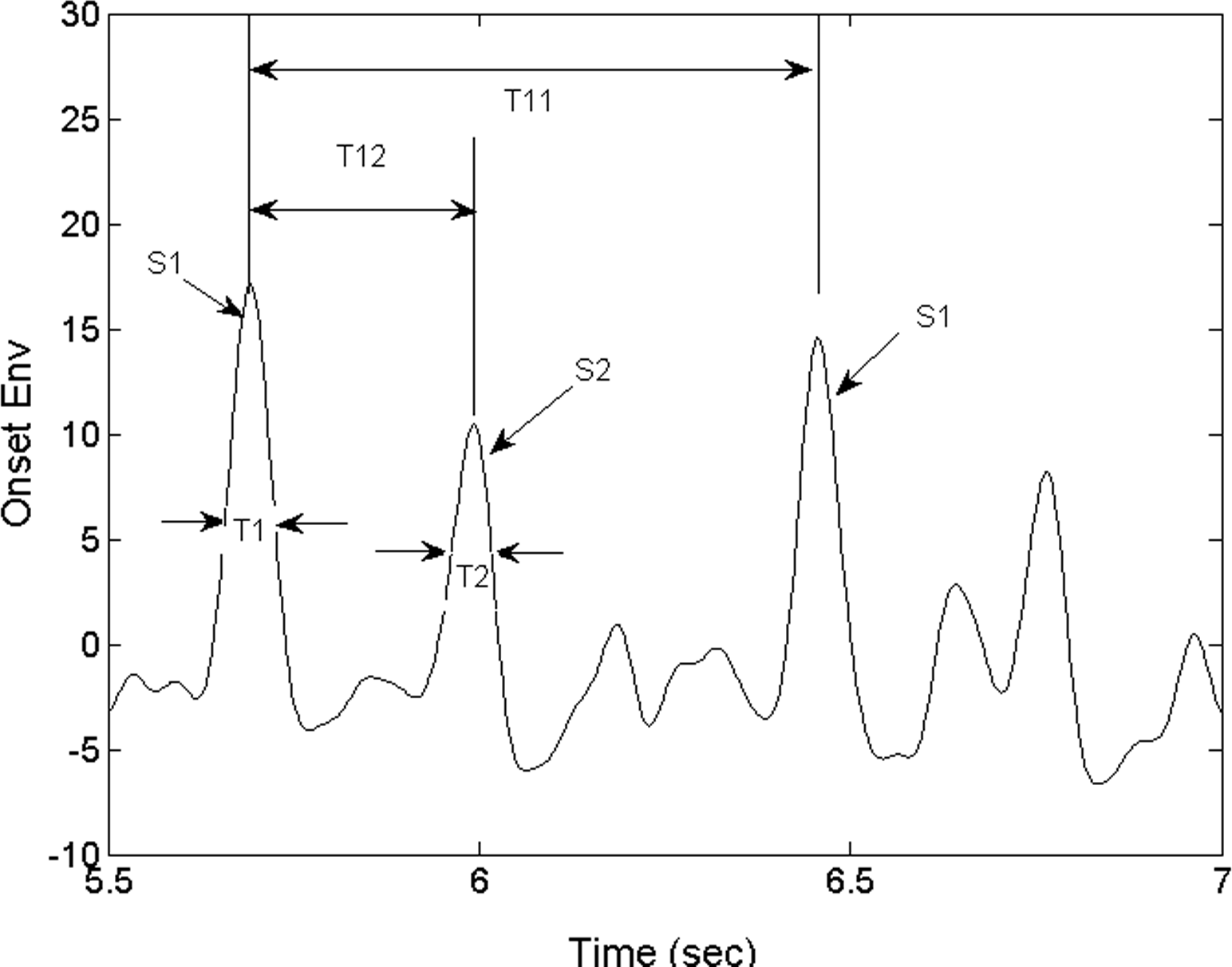 what was the time interval recorded between the first and second sounds Impairment of voice and speech occurs in the majority of patients in the course of parkinson's disease  time interval between  time between first and second.