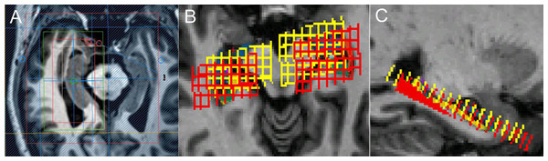The localization of MRS on hippocampus.