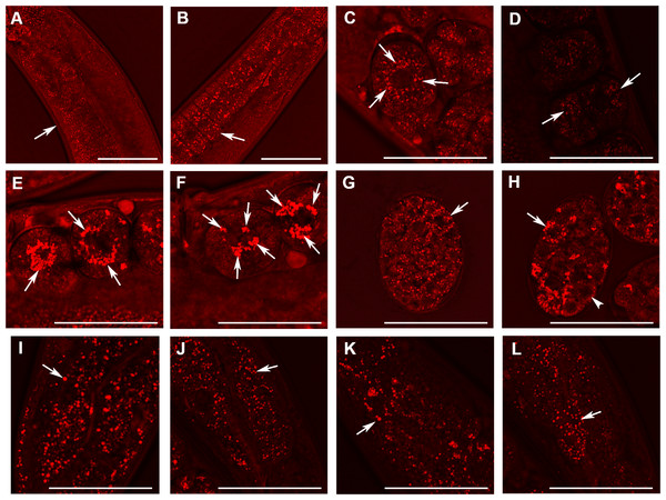 Analysis of lipid containing structures in live wild type animals and in animals with disrupted W01A8.1 by CARS microscopy.