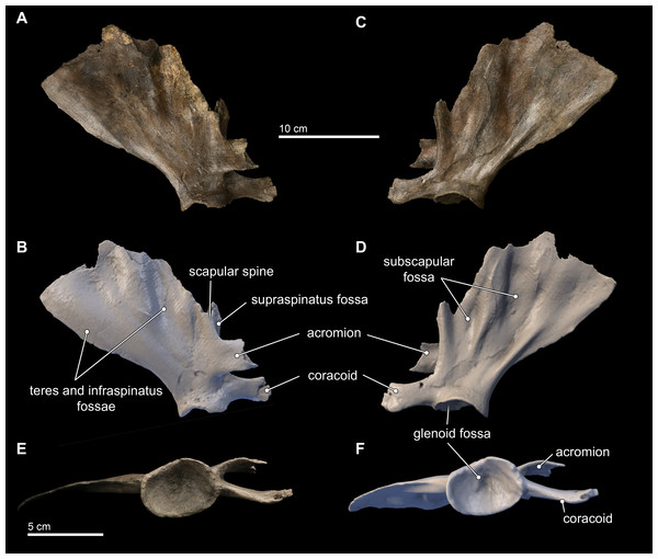 Scapula in lateral, medial, and distal views.