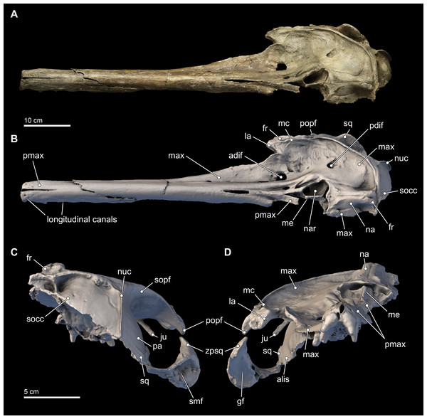 Skull in dorsal, anterior, and posterior views.