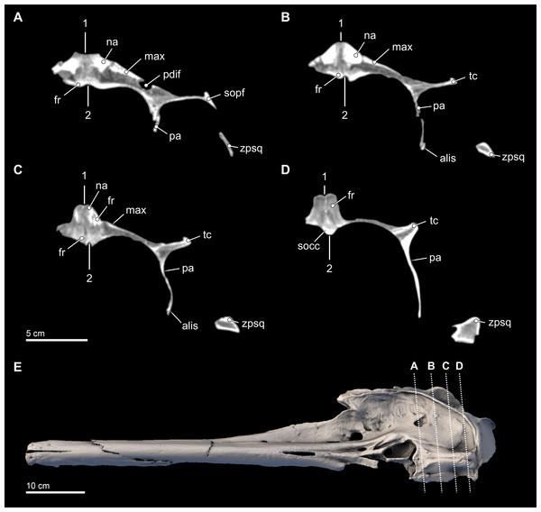 Transverse CT slices through the skull.