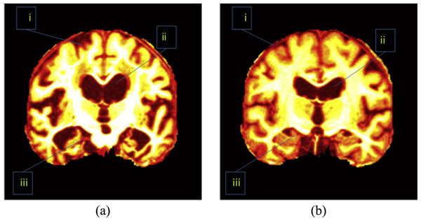 Important regions between (A) an AD brain and (B) a normal brain.