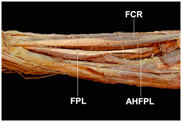 The accessory head of the flexor pollicis longus muscle (AHFPL) originating from the flexoe digitoum profundus.