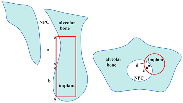 Description of nasopalatine canal (NPC) perforation in both sagittal slice and axial slice.