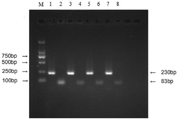 Relative expression level of IFITM3 mRNA was detected by RT-PCR.