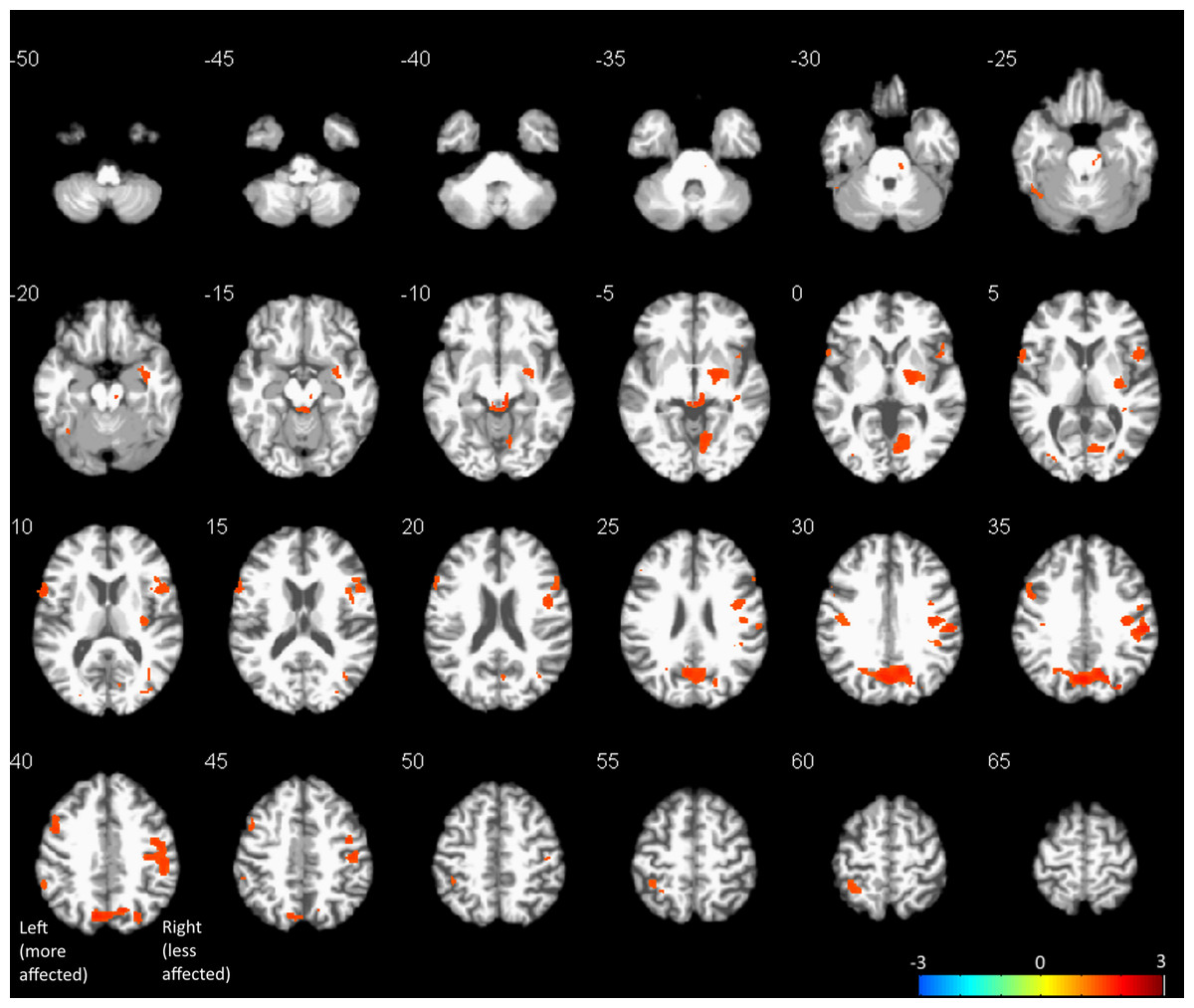 Effects of acute levodopa challenge on resting cerebral blood flow ...