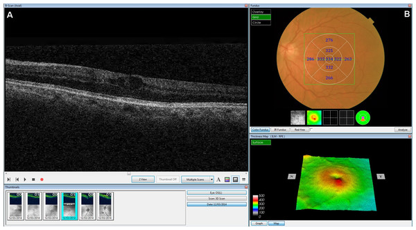 Screenshot of the retinal map analysis.