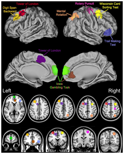Key brain areas as identified by neuroimaging and lesion studies and the corresponding Psychology Experiment Building Language Tests.